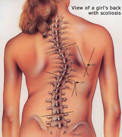 Image result for Scoliosis Treatment from Chiropractors